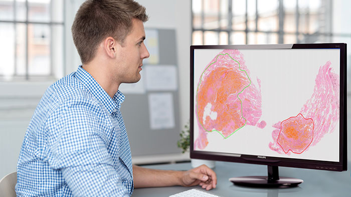 Philips introduces computational pathology software for automated prostate and ovarian tumor detection at ECP 2018